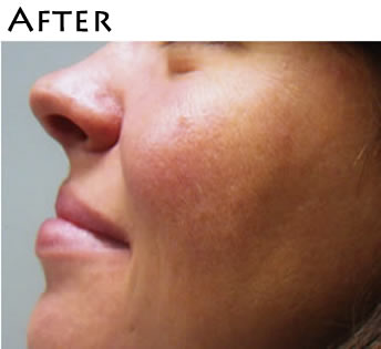 rosacea_after