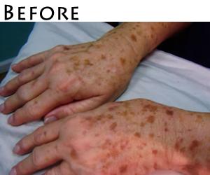 hands-sunspots-before