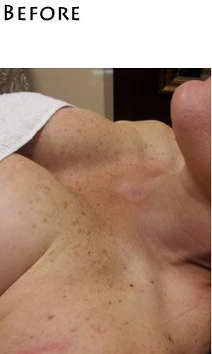 chest-before-photorejuv-m