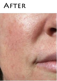 dermaplaning-after