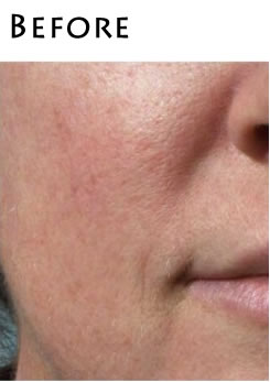 dermaplaning-before