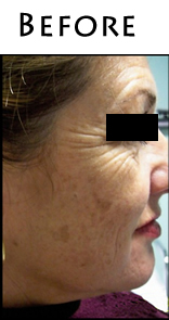 hyperpigmentation-Before_m