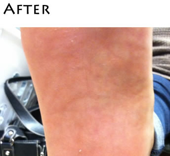 smoothing-body-peel-after2-m