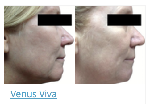 before and after 3 treatments